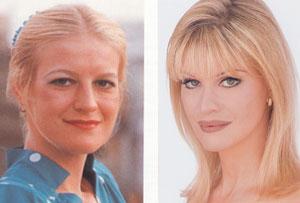 До и после пластической операции... (Синди Джексон)